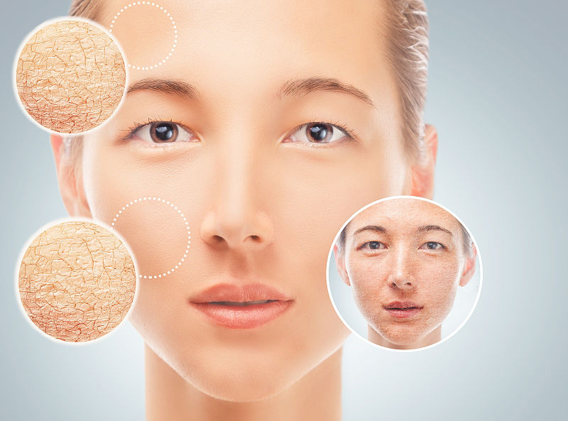 丽泽堂:如何缓解冬季皮肤干燥起皮